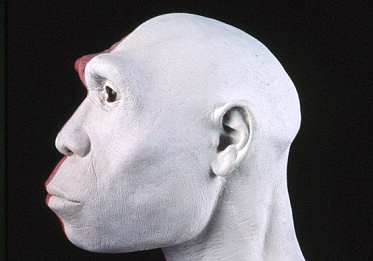 復顔過程4