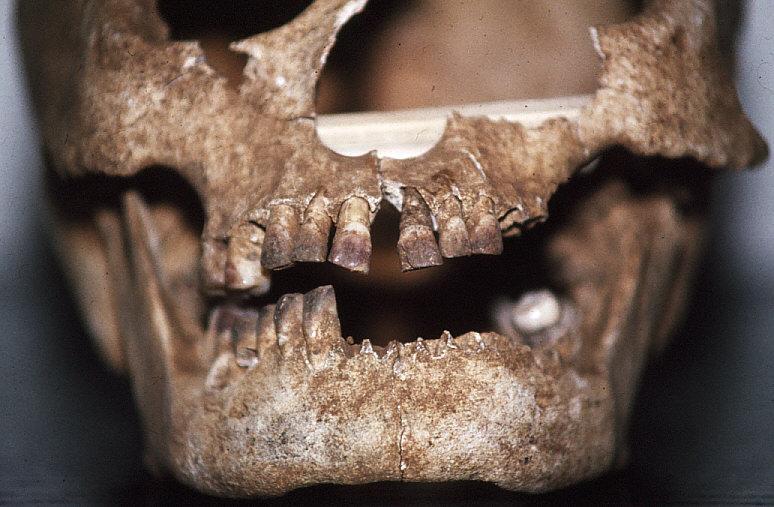 ラッテ・ストーン遺跡出土人骨顔面部近接1:歯がビンロージュで染まっている