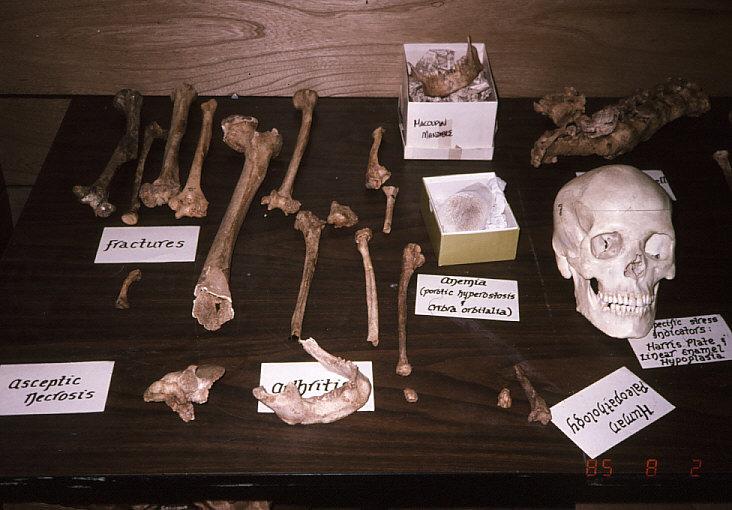 古病理学標本1