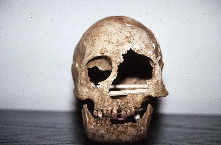 ラッテ・ストーン遺跡出土人骨頭蓋骨前面観