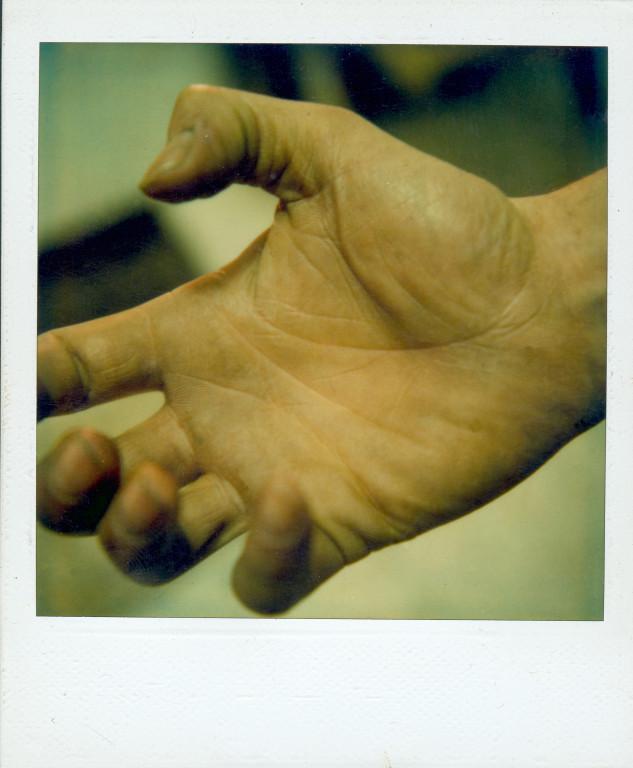 Meine Hand, ca.1982