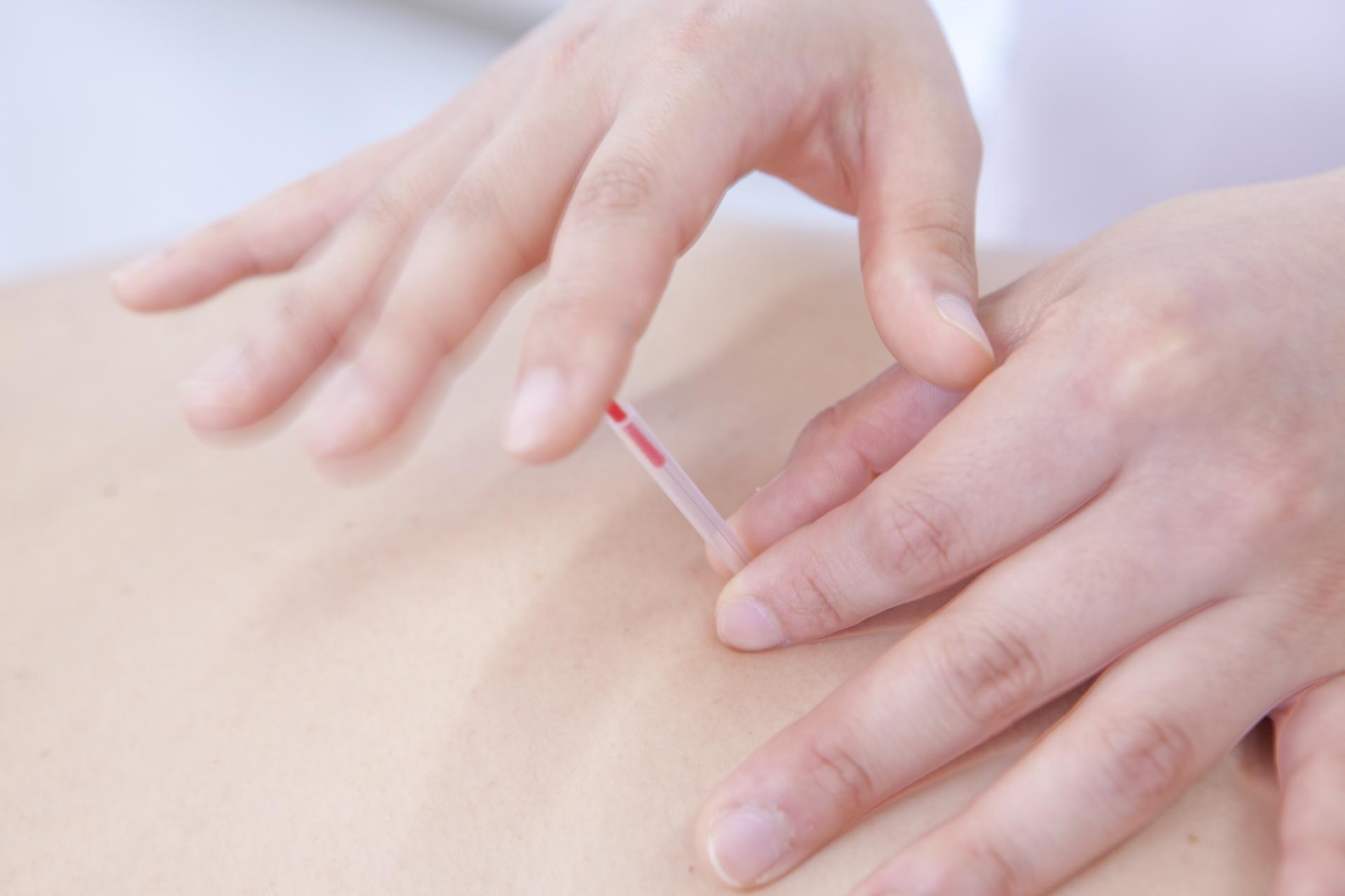 医療機関などで経験を積んだ本格的な鍼治療
