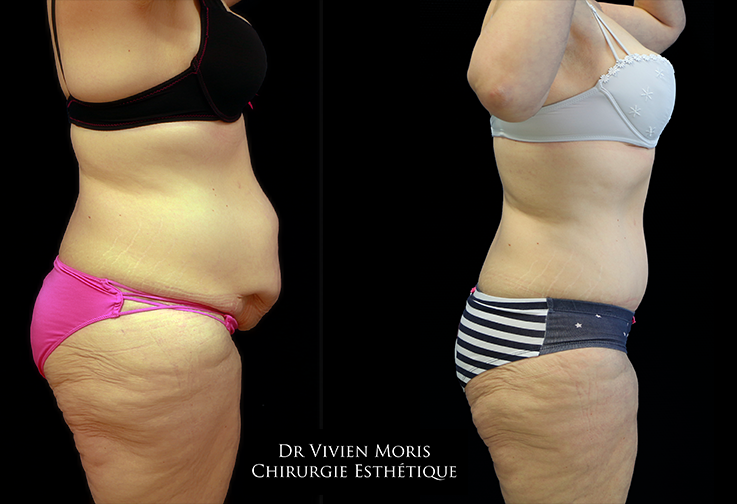 Plastie abdominale Profil Avant / Après Dr Vivien Moris