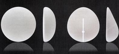prothèse mammaire, différences entre ronde et anatomique