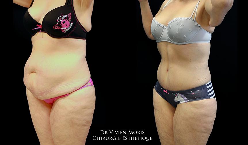Plastie abdominale 3-4 Avant / Après Dr Vivien Moris