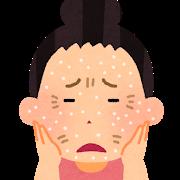 乾燥肌で粉を吹いている女性