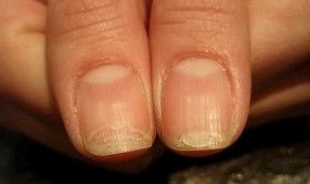 ネイルバー ヴィラーゴ|症例 二枚爪