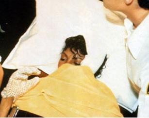 Майкл Джексон в ожоговом центре
