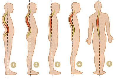 1. Iperlordosi. 2. Ipercifosi. 3. Colonna vertebrale piatta. 4.Non in asse. 5. Scoliosi.