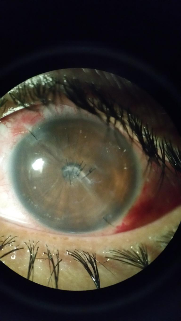 The corneal wound is sewn. Werner replaced the turbid lens with a clear plastic lens.