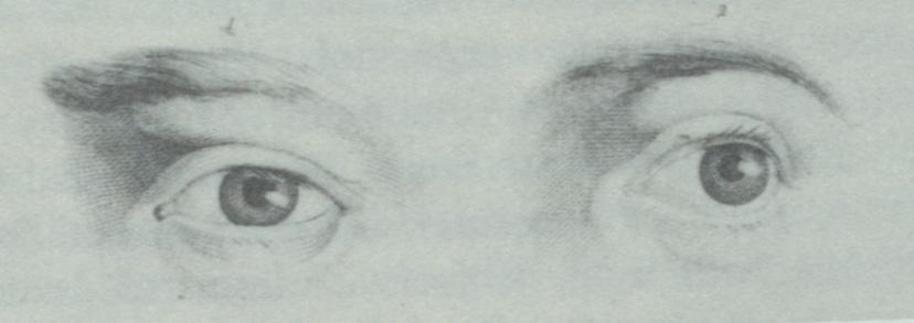 """""""zwei Augenexemplare, die verschiedenartiger nicht sein konnten, und somit selbst dem gelernten Physiognomen Rätsel aufgaben"""" (S.183) - 2 Beispiele aus Lavaters 'Physiognomische Fragmente zur Beförderung der Menschenkenntniß und Menschenliebe' (1775)"""