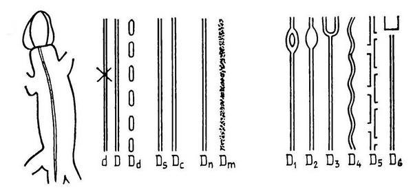 Фены рисунка спины по Пикулику (1988), центральная дорсомедиальная полоса