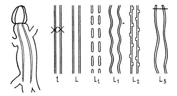 Фены рисунка спины по Пикулику (1988), дорсолатеральные полосы