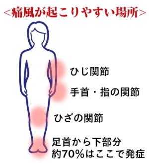 痛風は関節に発症します