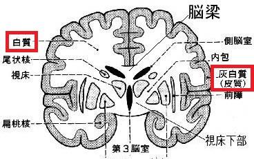 肥満の人と脳の実行機能 - 天然...