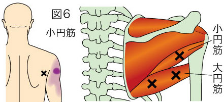 小円筋トリガーポイントによる肩の痛み