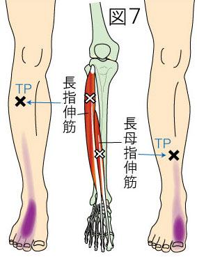 長趾伸筋トリガーポイントによる下腿と足の痛み