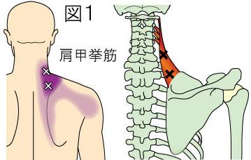 肩甲挙筋トリガーポイントによる首から背部の痛み