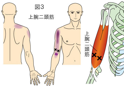 上腕二頭筋トリガーポイントによる肩と上腕から肘の痛み