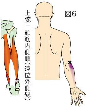 上腕三頭筋内側頭(遠位外側縁)トリガーポイントによる肘・前腕外側の痛み
