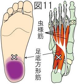 足底方形筋トリガーポイントによる足の痛み