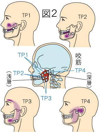 咬筋トリガーポイントによる頭痛と顔の痛み