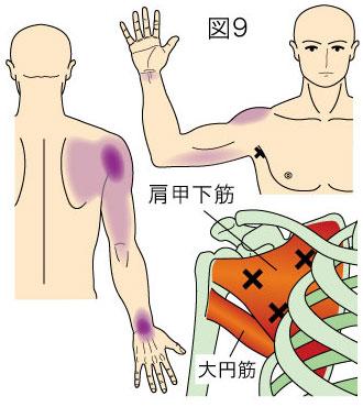 肩甲下筋トリガーポイント」による肩甲骨、肩、上腕、手の痛み