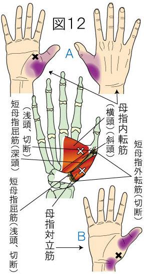 母指内転筋・母指対立筋トリガーポイントによる手・指の痛み