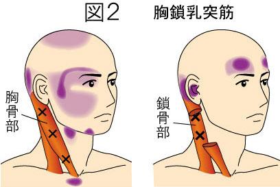 胸鎖乳突筋トリガーポイントによる痛みとしびれの領域