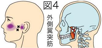 外側翼突筋トリガーポイントによる顔と顎の痛み