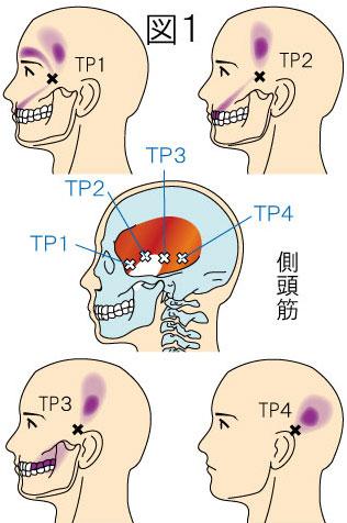 側頭筋トリガーポイントによる頭痛と顔の痛み