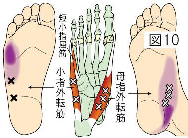 小指・母指外転筋トリガーポイントによる足の痛み