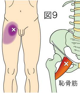 恥骨筋トリガーポイントによる鼡径部と大腿の痛み