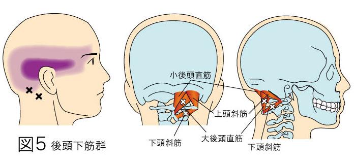 後頭下筋:大・小後頭直筋、上・下頭斜筋トリガーポイントによる顔の痛みと頭痛