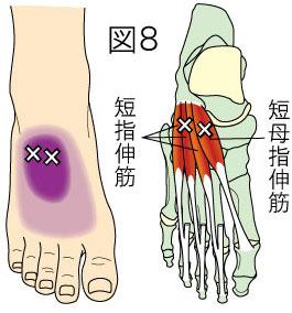 短指伸筋トリガーポイントによる足の痛み