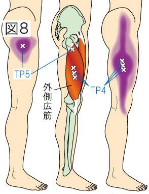 外側広筋トリガーポイントによる股関節・大腿・膝の痛み