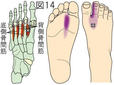 骨間筋トリガーポイントによる足の痛み