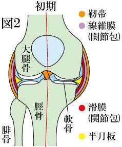 変形性膝関節症 初期