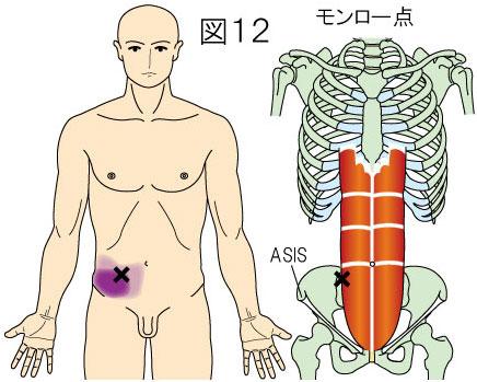 腹直筋外縁(モンロー点)トリガーポイントによる腹部の痛み