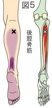 後脛骨筋トリガーポイントによる下腿と足の痛み