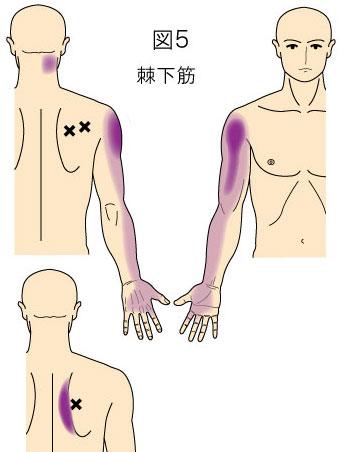 棘下筋トリガーポイントによる首、上背部、上肢の痛み