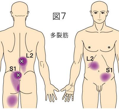 多裂筋トリガーポイントによる背部と腹部の痛み