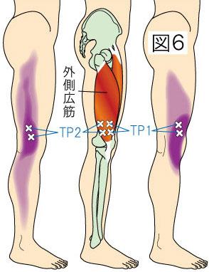 外側広筋トリガーポイントによる大腿・膝・下腿の痛み