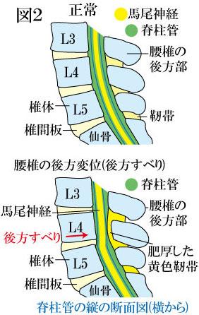 腰部脊柱管狭窄症と腰椎後方すべり