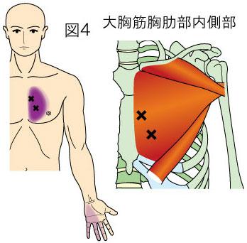 大胸筋胸肋部内側部トリガーポイントによる胸と手の痛み