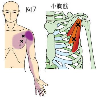 小胸筋トリガーポイントによる胸と上肢の痛み