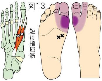 短母指屈筋トリガーポイントによる足の痛み