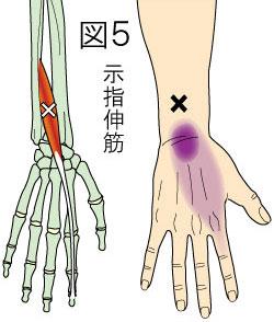 示指伸筋トリガーポイントによる手の痛み