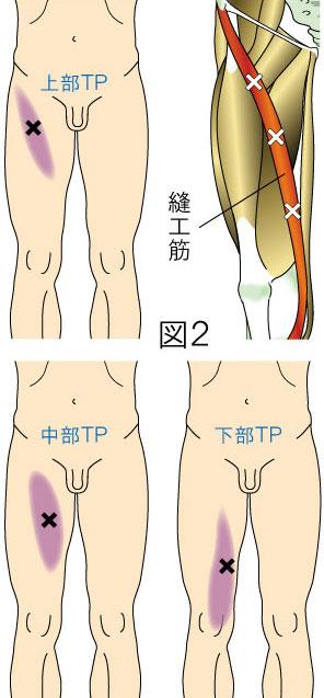 縫工筋トリガーポイントによる大腿・膝の痛み