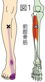 前脛骨筋トリガーポイントによる下腿と足の痛み